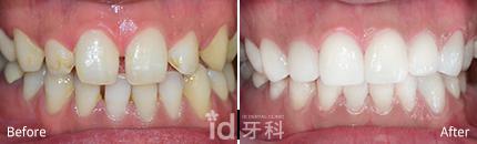 钻石瓷贴面 施术前后对比