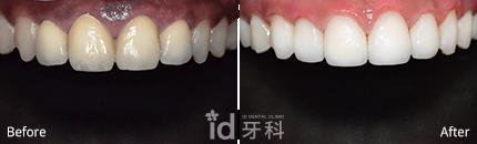 牙龈美白 施术前后对比