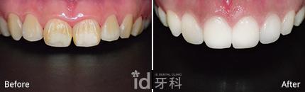 牙龈整容 施术前后对比