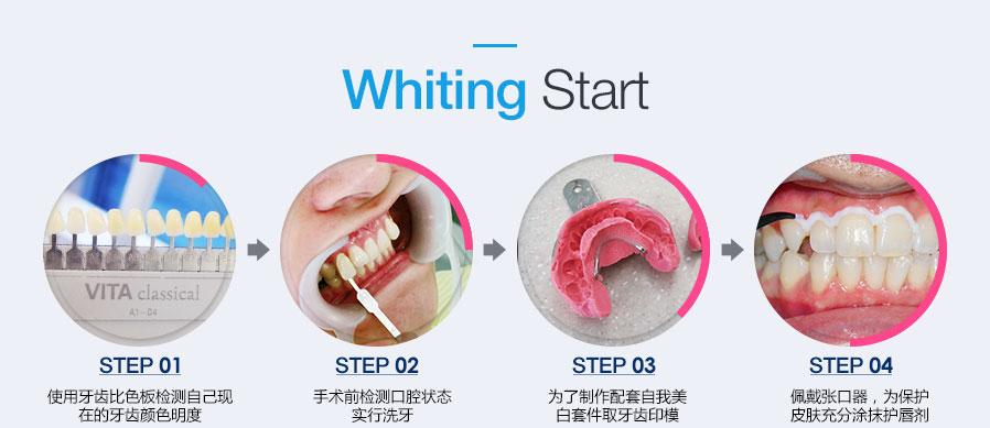 使用牙齿比色板检测自己现在的牙齿颜色明度