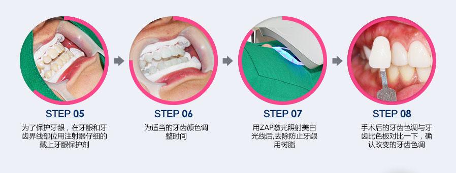为了保护牙龈,在牙龈和牙齿界线部位用注射器仔细的带上牙龈保护剂