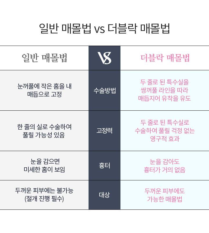 일반 vs 더블락 매몰법