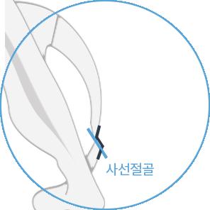 id 사선절골술