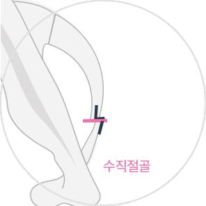 기존 L절골