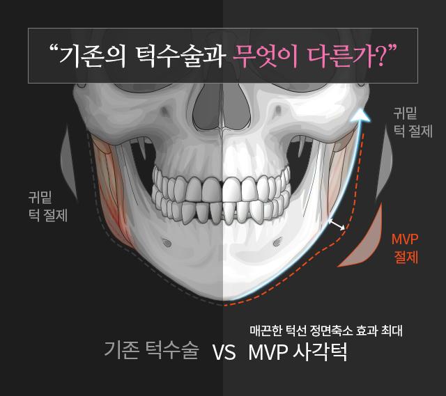 기존의 턱수술과 무엇이 다른가?