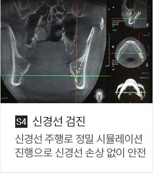 신경선 검진