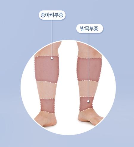 다리 부종 원인