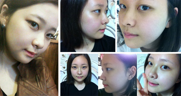 plastic surgery in Korea 1 months after