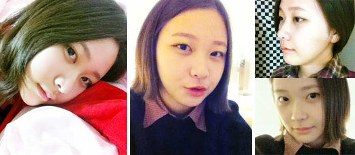 plastic surgery in Korea 2 months after