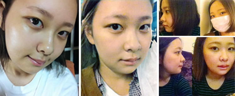 plastic surgery in Korea 3 weeks after