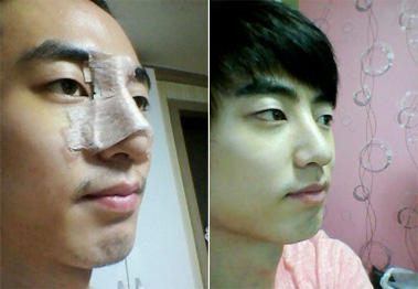 korean hump nose job