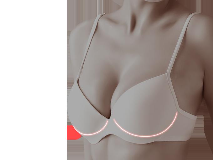 가슴 성형 모델