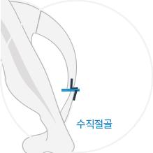 기존 수직절골술