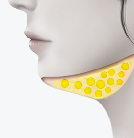 턱 밑 지방 변화